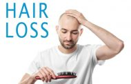 Dealing With Hair Loss When It Happens To You